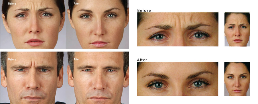 botox-before-and-after-cosmetic-treatment