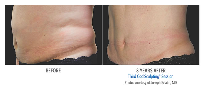 coolsculpting-before-after-results-02