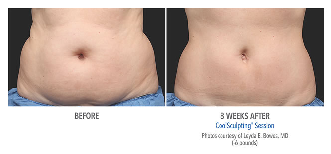 coolsculpting-before-after-results