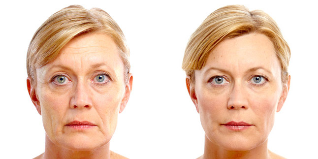 before-after-juvederm-02